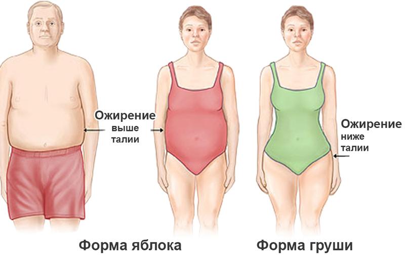 Распределение жировой ткани по телу в виде яблока и груши картинка